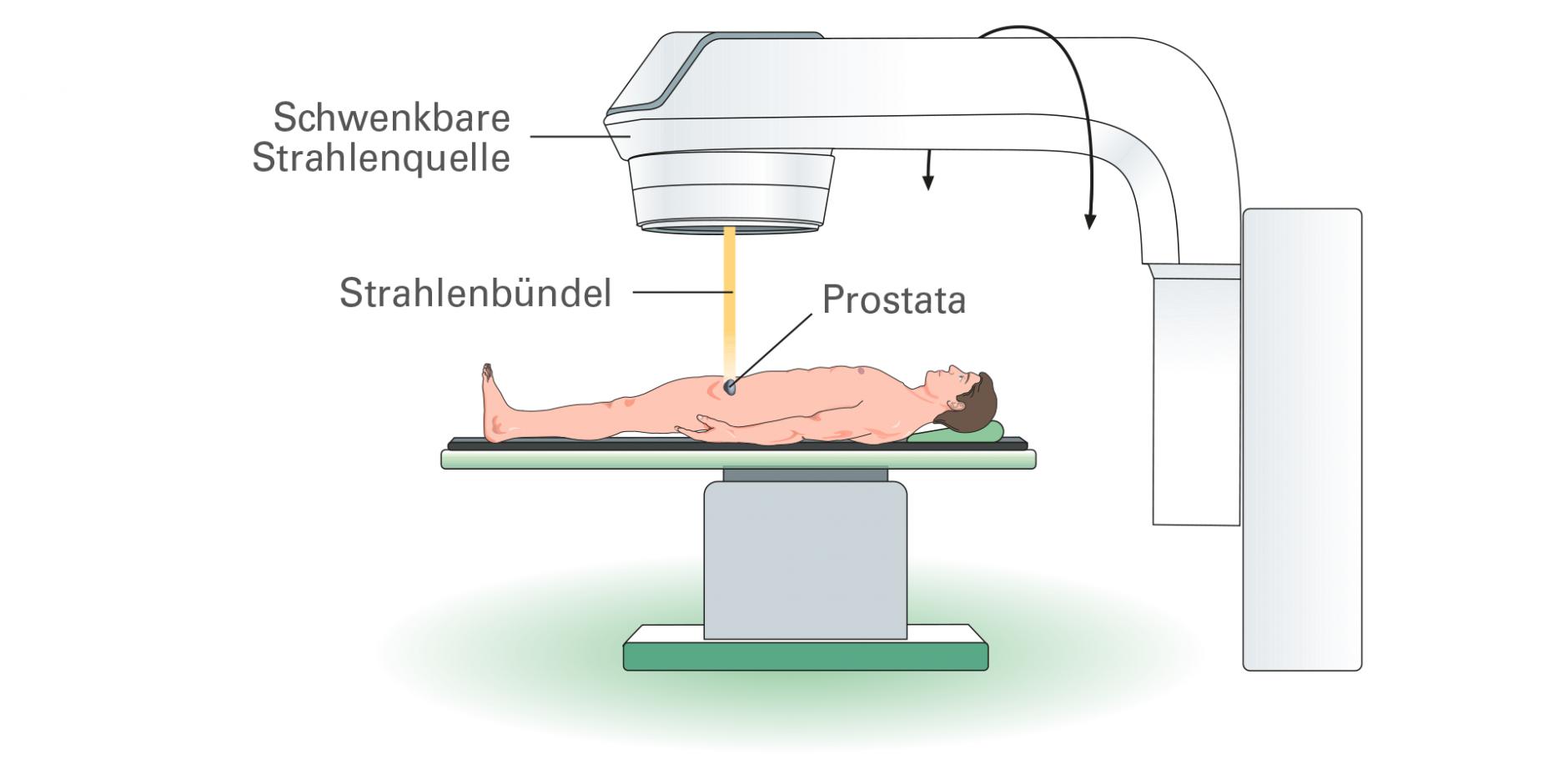 Von außen stimulieren prostata So funktioniert